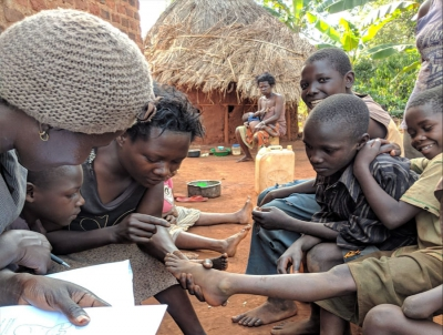 Research on effects of and reasons for tungiasis in Busoga region